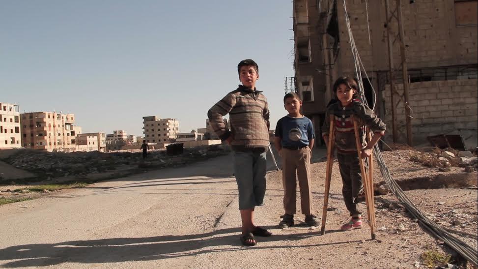 أطفال في الغوطة الشرقية بينهم طفلة فقدت رجلها. المصدر: حكاية ما انحكت