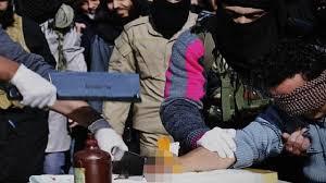تنفيذ داعش حد السرقة بقطع يد السارق حسب الشريعة الإسلامية أمام مشفى الأمل في منبج، 25 كانون الثاني 2015، المصدر: موقع صوت وصورة.
